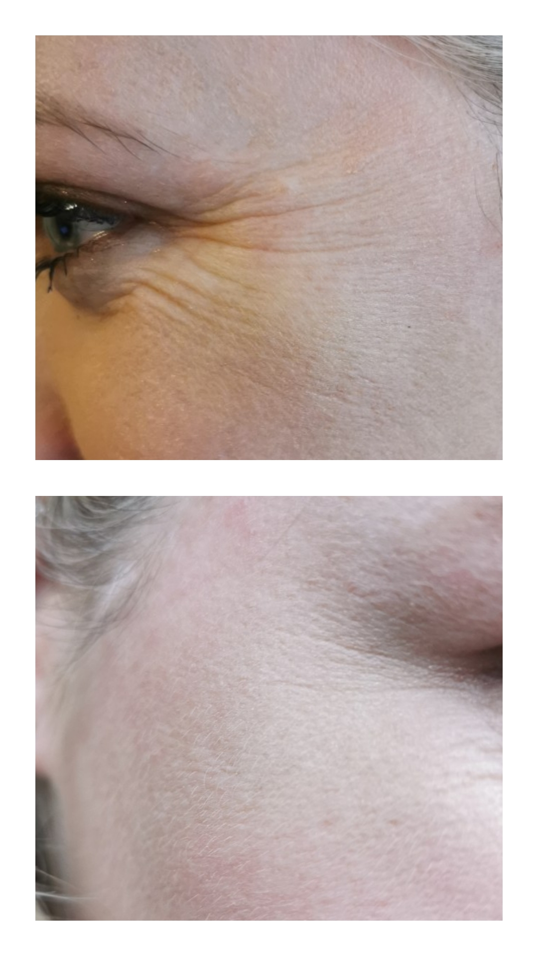 Before and After Botox Image